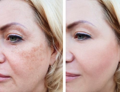 girl face wrinkles before and after_ pigmentation