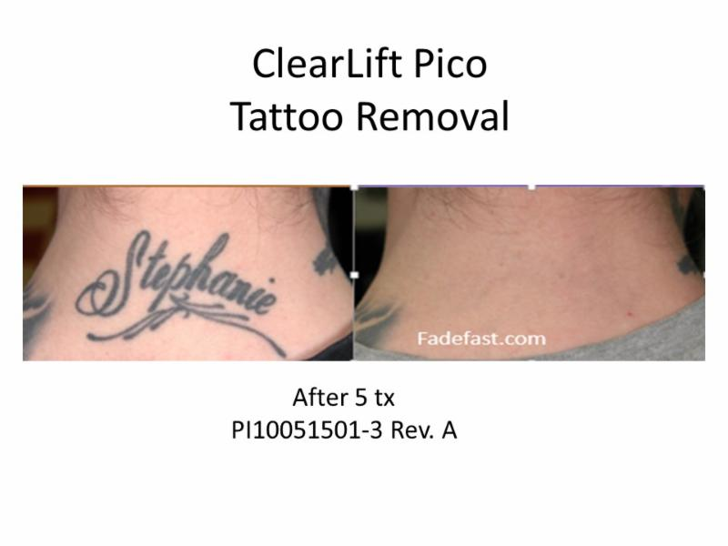 Tattoo Removal Event at Alamo Hills Laser!