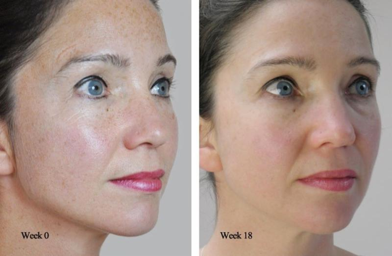 Microneedling : What it is, What it's not and Why you want it... img 1
