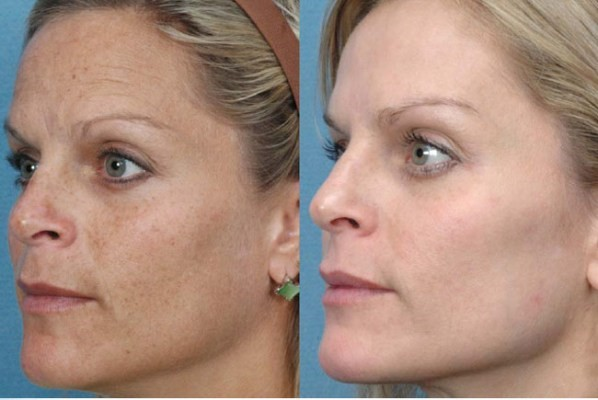 Microneedling : What it is, What it's not and Why you want it... img 4