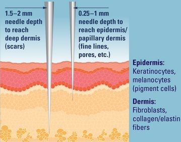 Microneedling : What it is, What it's not and Why you want it... img 2