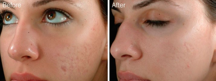 Microneedling : What it is, What it's not and Why you want it... img 3