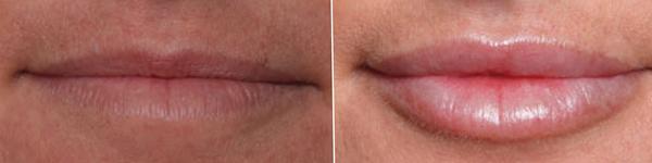 Lips-rubina