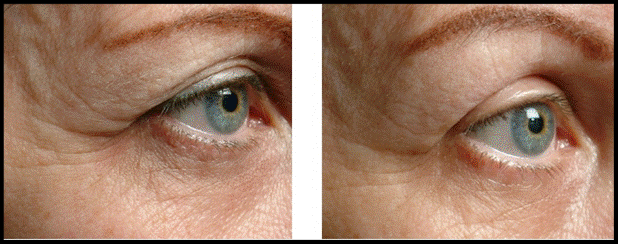 Thermage before and after 3