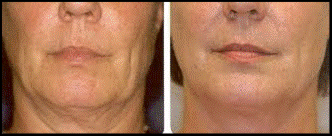 thermage before and after 1