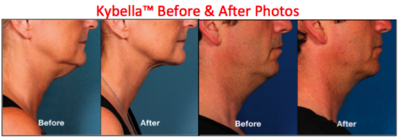 Kybella in Charlotte Before After