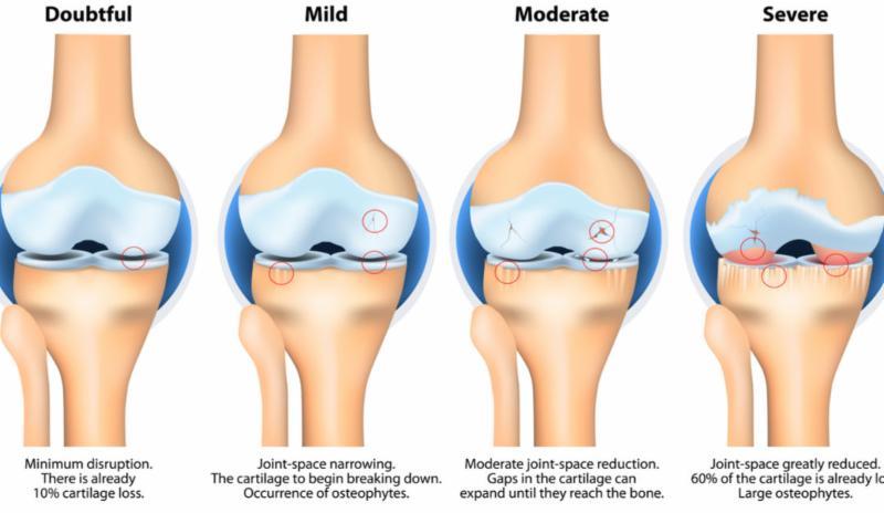 Osteoarthritis- Knee