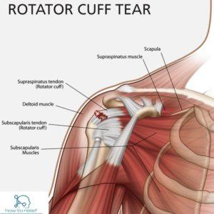 Tendon Tear- Shoulder