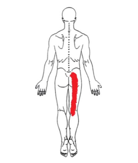 Nerve Entrapment- Sciatic pain