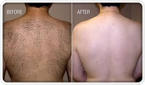 Laser Hair Removal - Men's Back