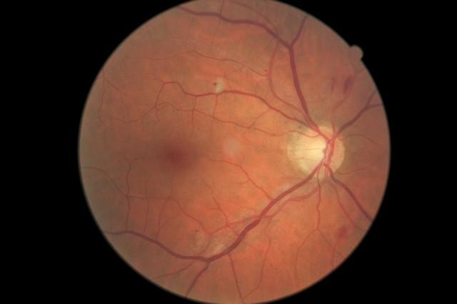 diabetic retinopathy 2