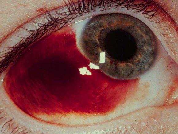 conjunctival hemorrhage