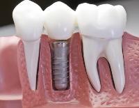 Is it time to reconsider how to floss implants?