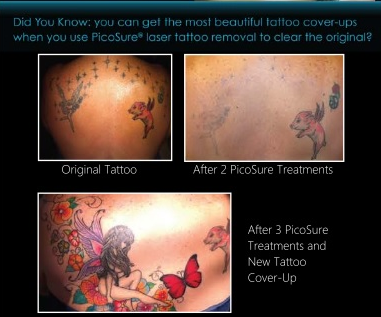 In office event all about tattoo editing tatfreemd for Picosure tattoo removal michigan