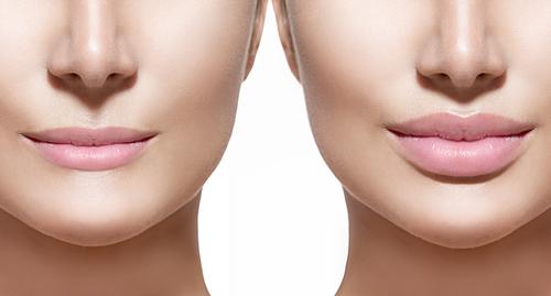 March, Level 1 Botox & Dermal Filler Training Courses